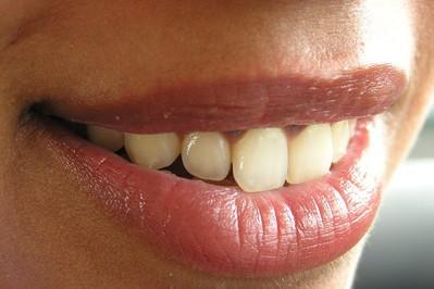 Rodzaje implantów stomatologicznych