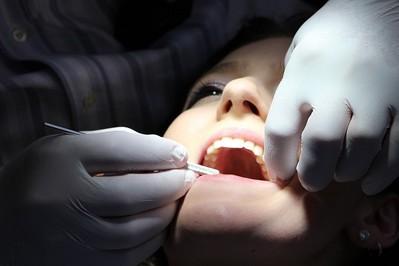 Plombowanie zębów: wymień czarne wypełnienia na nowoczesne kompozytowe!